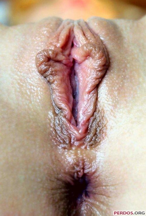 nastoyka-propolisa-lechenie-vospaleniya-vlagalisha